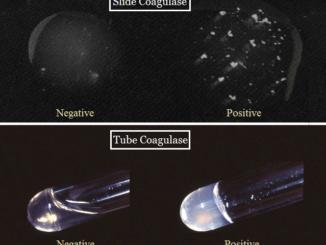 Coagulase-test