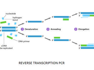 COVID-19-RT-PCR