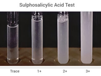 Sulphosalicylic-Acid-Test